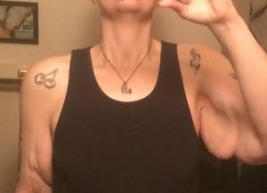 loose-arm-skin-132-pounds-down-jan-21-2015